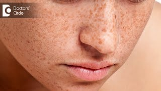 How to get rid of freckles on face? - Dr. Swetha Sunny Paul