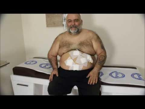 süper obez hastanın ameliyat sonrası 4  gün görüşleri
