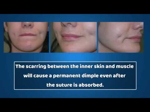 Dimpleplasty Surgery Mumbai India| Dimple Creation Surgery Cost| Dr. Debraj Shome