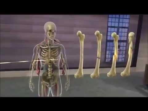Realidad Virtual para formacion en Anatomía - YouTube