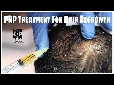PRP Treatment For Hair Regrowth With Full Details