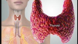 Тиреотоксикоз. Лечение тиреотоксикоза. Гипотериоз. Аутоиммунный тиреоидит. Узловой и диффузный зоб.