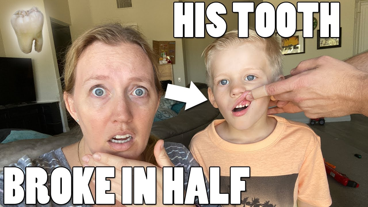 MICHAEL BROKE HIS TOOTH IN HALF!! || Mommy Monday