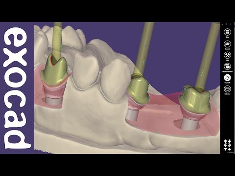 exocad Video Tutorial (basic): Custom Abutment Design