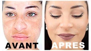 COMMENT CAMOUFLER SES IMPERFECTIONS EN 3 ETAPES ( taches, acnée, cicatrices...)