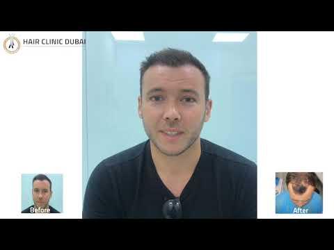 MrAlexander Talks About Hair Clinic Dubai Experience