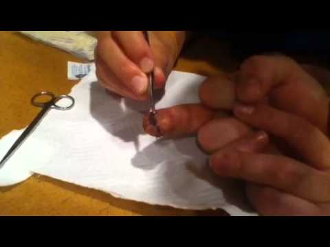 Smashed Finger Stitch Removal - YouTube