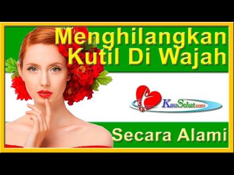 cara-menghilangkan-kutil-di-wajah---perawatan-kesehatan-tubuh-wanita-indonesia