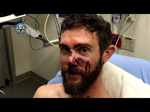 In Case You Missed It: Trail Runner Travis Kauffman Recounts Mountain Lion Attack