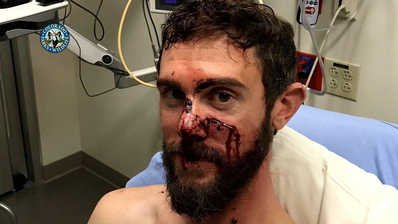 Colorado Man, Travis Kauffman, Survives Mountain Lion