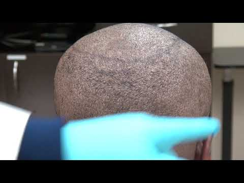 fue-donor-scar-results-scatted-mosaic-pattern-dr-diep-specialized-hair-loss-doctor