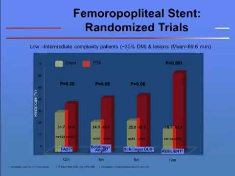 Use of Drug Eluting Stents in Endovascular Treatment of Femoropopliteal PAD