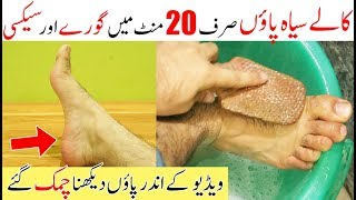How To Get White Hands & Feets Instantly   How To Remove Tan From Feet Immediately