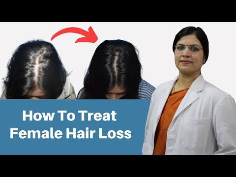 How To Treat Female Hair Loss | बाल झड़ना कैसे रोके? | Dr. Seema Garg