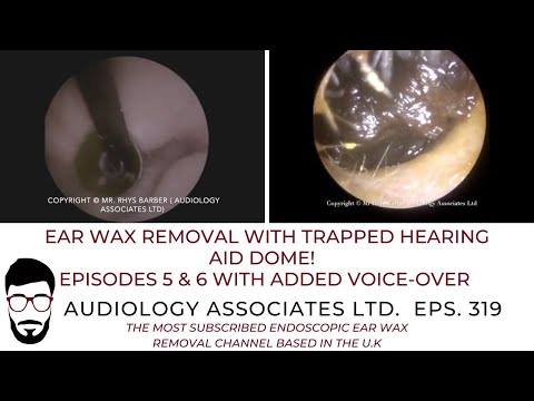 EAR WAX REMOVAL WITH TRAPPED HEARING AID DOME - EP 319