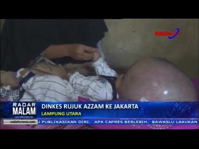 Dinkes Rujuk Azzam Penderita hydrocephalus Ke Jakarta