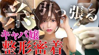 【整形密着】No.1キャバ嬢が行く大人気のフェイスリフト施術の全貌をお見せします。【ビフォーアフター】
