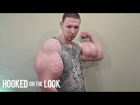 It Came From The Web - Russian Man Injects Chemicals into His Arms to Make Them Bigger