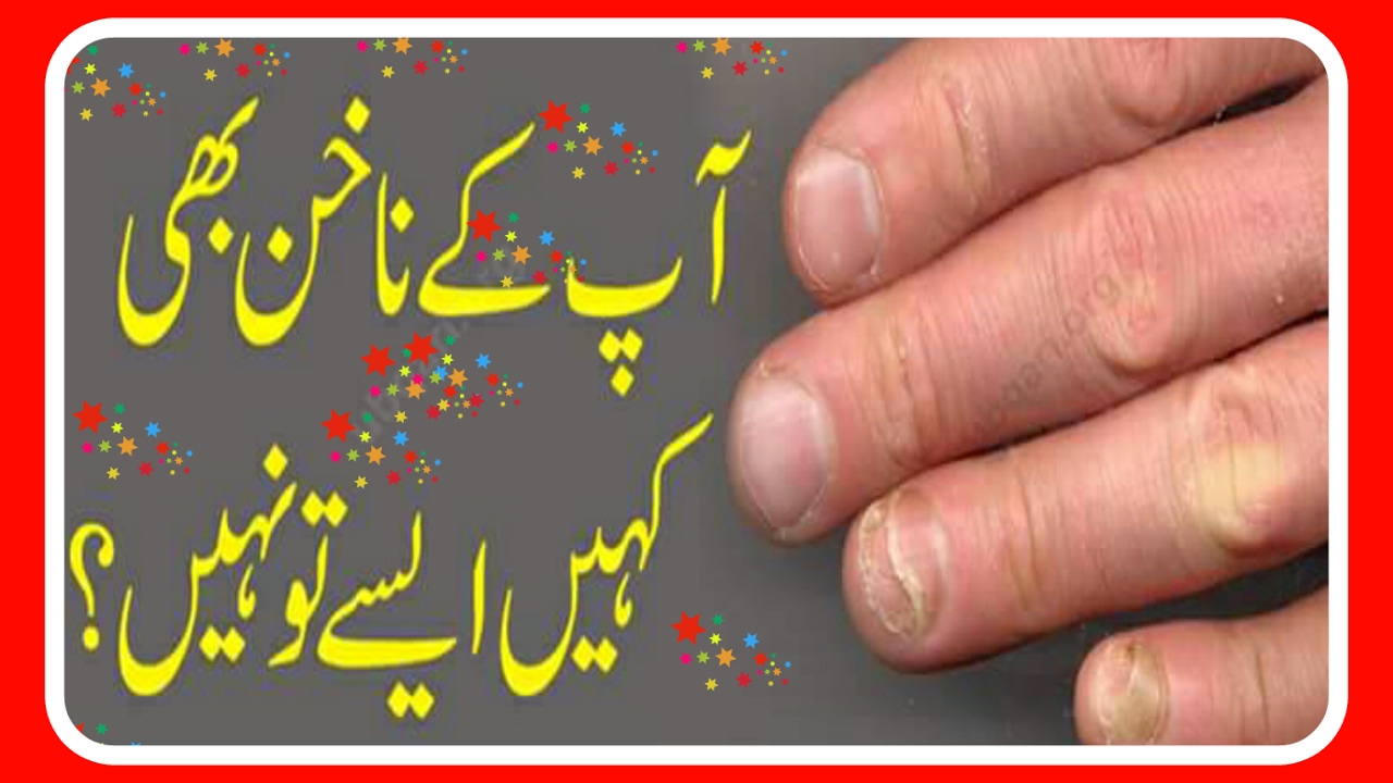 Health Tips Urdu By Drarshad Nail Problems