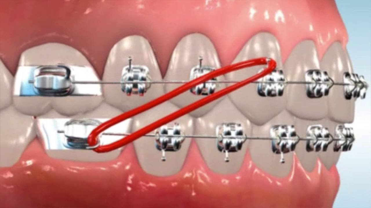 Class 2 Elastics Easton Ortho 101 With Dr Loftus Youtube