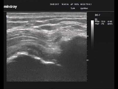 Отрыв сухожилий надостной и подостной мышц, сухожилия длинной головки бицепса плеча