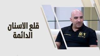 د. خالد عبيدات - قلع الاسنان الدائمة