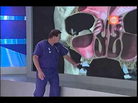 Dr. TV Perú (18-04-2013) - B3 - Asistente del día: Sinusitis
