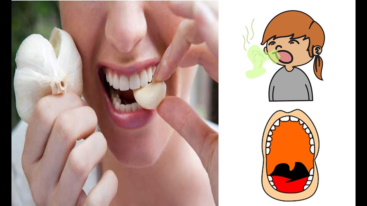 Bad Breath Treatment >> Bad Breath Treatment How To Remove Garlic Smell From Your Breath