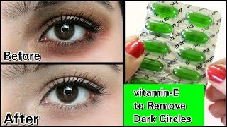 Remove Dark Circles in 3 days with Vitamin- E (100% Works)