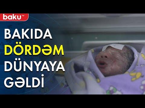 Bakıda DÖRDƏM dünyaya gəldi - Baku TV