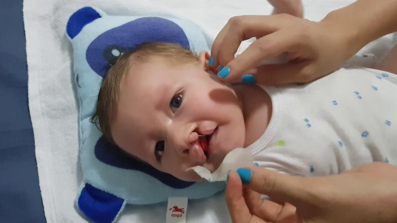 Cambio de cinta para ni os con labio y paladar hendido - Baneras con cambiador para bebes ...