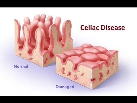 Natural and Home Remedies for Celiac Disease - YouTube