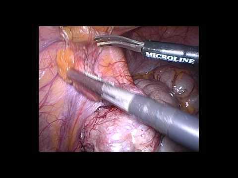 Bumpy rash on anal area