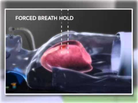 Lung Tumor Treatment Using Forced Breath Hold Technique ...