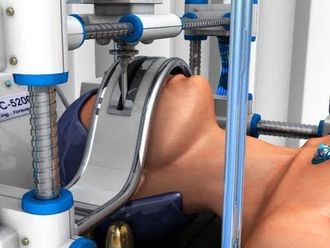 0 - 3D-Drucker erzeugen erstmals Blutgefäße