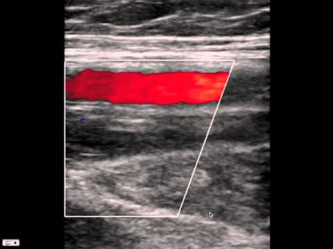 Blood Clot In Leg Ultrasound | www.pixshark.com - Images ...