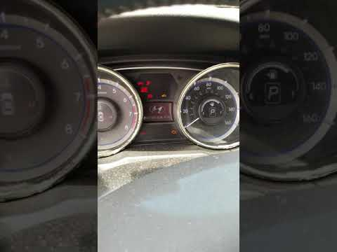 Car does not start after replacing starter lever | Hyundai