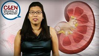 How to Avoid Kidney Stones - Speaking of Chemistry