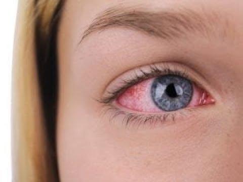 Điều cần biết về đau mắt đỏ không biết thật đáng tiếc