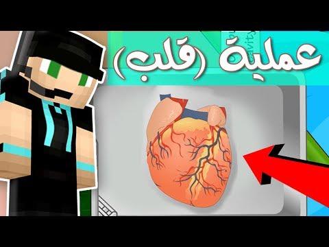الدكتور فيصل يفشل في أضخم عملية قلب في العالم ؟!! 😱💉
