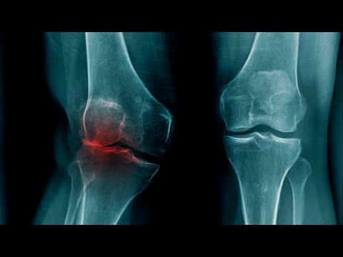 Probleme Mit Knie-Arthrose