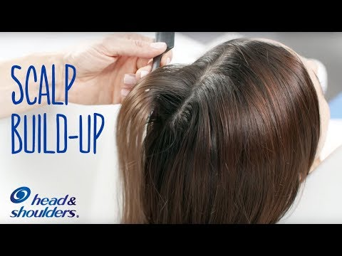 Scalp Build-Up From Hair Styling Products | Hair Care Tips