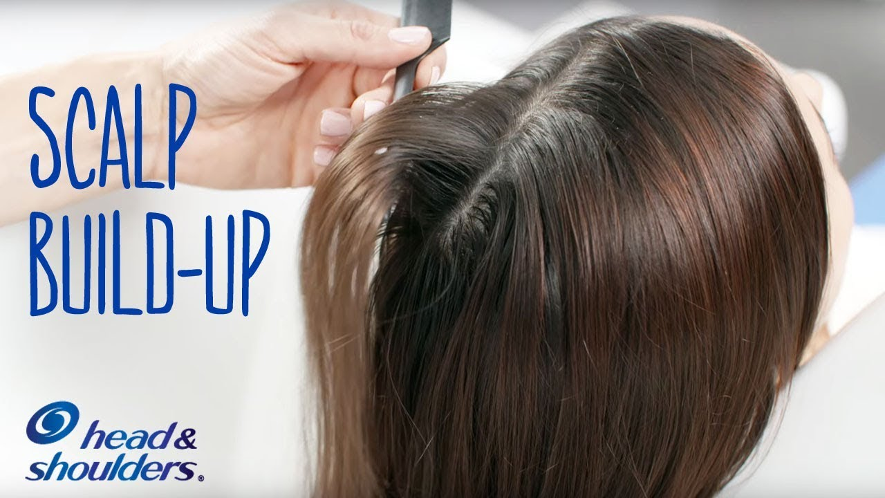 Scalp Build Up From Hair Styling Products Hair Care Tips Youtube