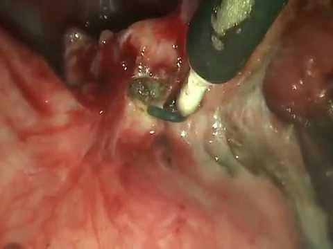 Эндометриоз брюшины пузырно-маточной складки.Иссечение.