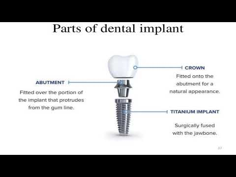 dental-implants-in-pediatric-dentistry.-growth-and-development