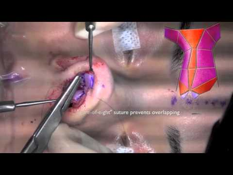 Rhinoplasty: Surface Aesthetics and Surgical Techniques