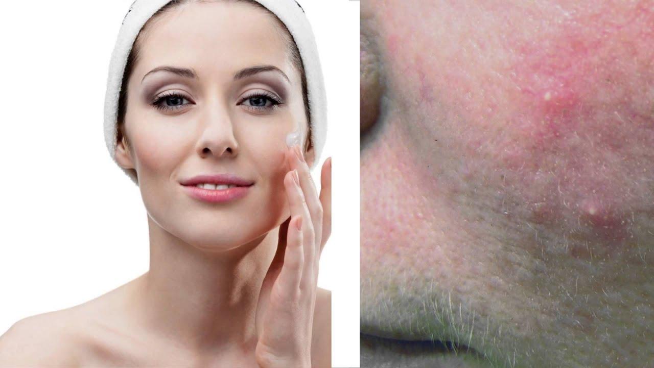 Rosacea Treatment Toronto - Rosacea & Acne Laser Clinic Toronto