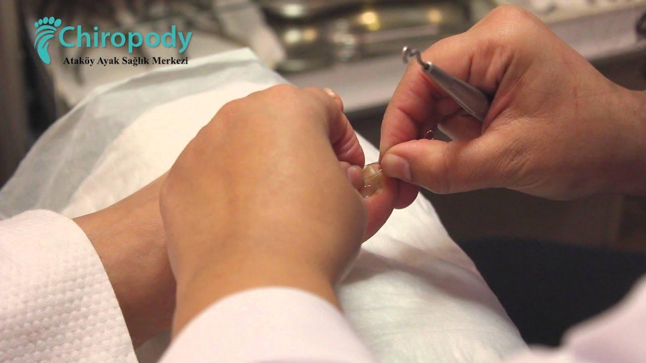 Tırnak Batması Tedavisi Nasıl Yapılır