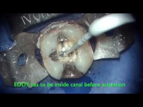 EDDY - cleaning root canal and isthmus of second molar