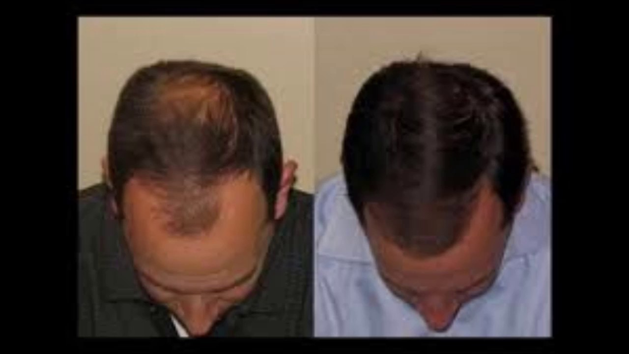 How Fast Will Your Hair Grow Using Castor Oil Before And After Youtube